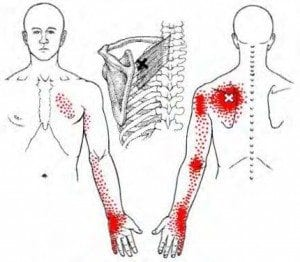 Common pain referral pattern from the levator scapula/upper trapezius region